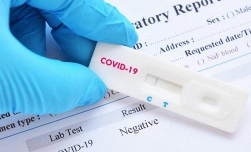 С 1 Сентября ПЦР и антиген тест будут платные